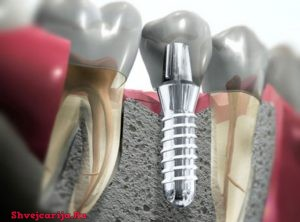 Швейцарская стоматология и ортодонтия