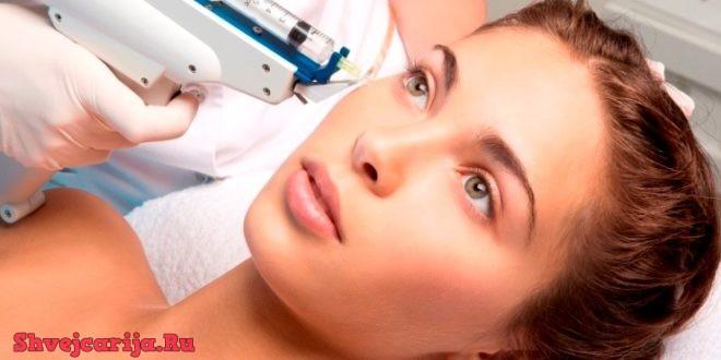 Омоложение лица гиалуроновой кислотой в Швейцарии