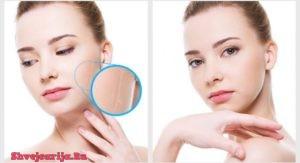 Лечение шрамов в Швейцарии