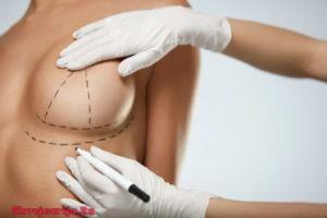 Пластическая хирургия тела в Швейцарии