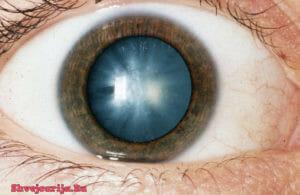 Лечение в Швейцарии дегенеративно-дистрофических заболеваний глаз