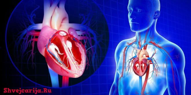 Лечение аритмии сердца в Швейцарии - Кардиология в Швейцарии