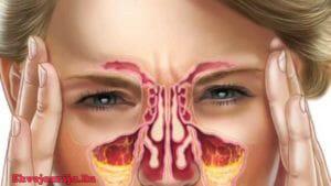 Лечение заболеваний носа в Швейцарии