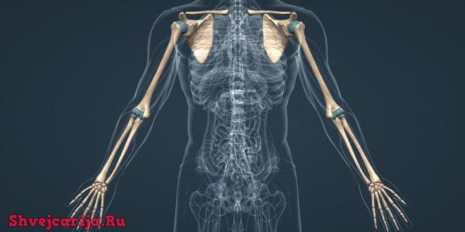 Нарушения функций конечностей - Невропатология в Швейцарии