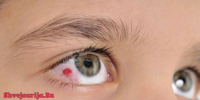 Лечение в Швейцарии травм и опухолей глаз