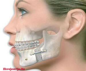 Челюстно лицевая хирургия в Швейцарии