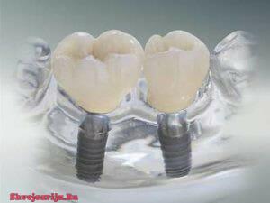 Хирургическая стоматология в Швейцарии