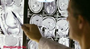 Лечение онкологии в Швейцарии