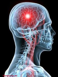 Лечение пухолей центральной нервной системы в Швейцарии