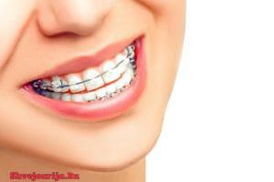 Ортодонтология в Швейцарии - Стоматология в Швейцарии
