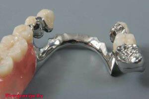 Ортопедическая стоматология в Швейцарии