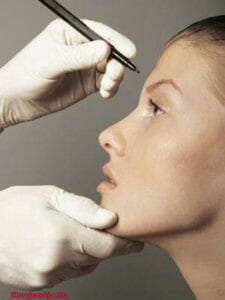 Пластика лица и шеи. Пластическая хирургия в Швейцарии
