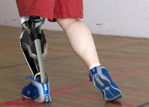 Протезирование суставов и конечностей в Швейцарии